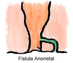 fistula-anoretal