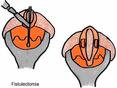 fistulectomia